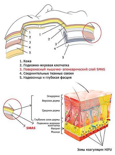 Отек подкожно жировой клетчатки называется